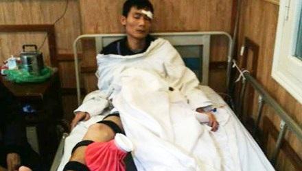 Chiến sĩ cơ động đang được điều trị tại bệnh viện