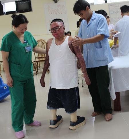 Thượng úy Đinh Văn Dương đang tập những bước đi đầu tiên với đôi chân giả. Ảnh: MỘC MIÊN