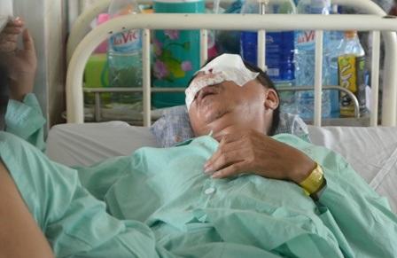 Nạn nhân bị hỏng hoàn toàn mắt trái vì bị đá ném trúng vào mặt