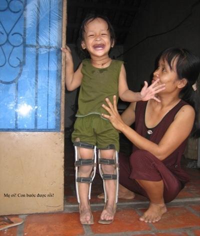 Bé Trang Thanh Trà cười tươi rạng rỡ vì đã có thể tự đứng trên đôi chân được bó nẹp của mình