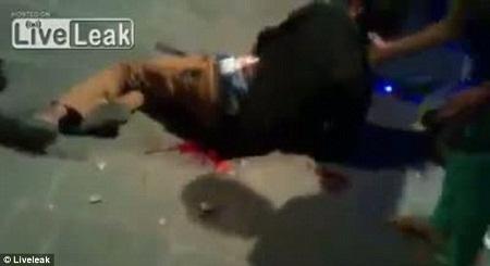 Một nạn nhân bị thương đang quằn quại vì đau đớn.