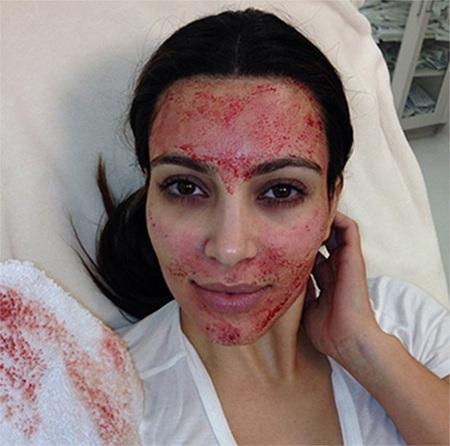 Cận cảnh khuôn mặt Kim Kardashianvà phương pháp làm đẹp mới.
