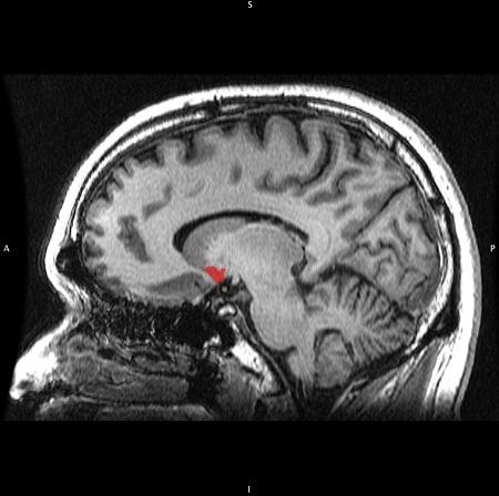 2. Làm cho não bộ hơi 'OCD'