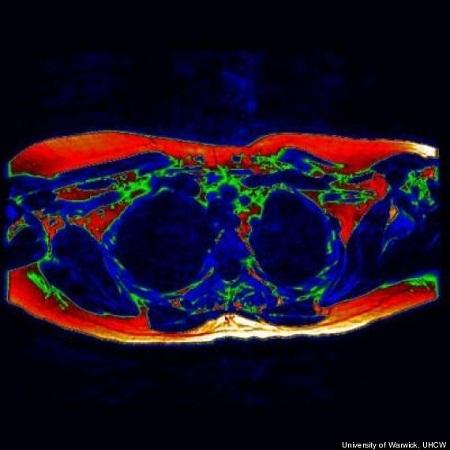 Chụp cộng hưởng từ MRI phần ngự, k