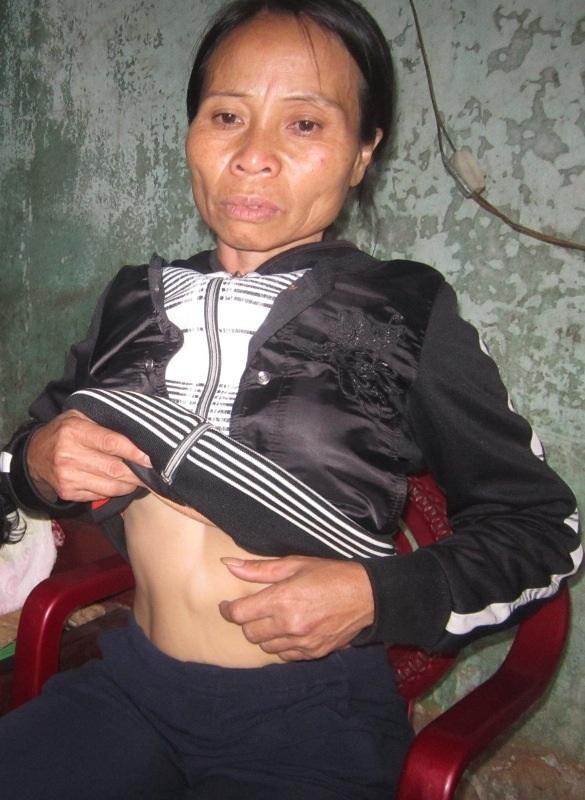 Bị u máu nhưng không có tiền chữa trị nên bệnh của chị Quý ngày một nặng