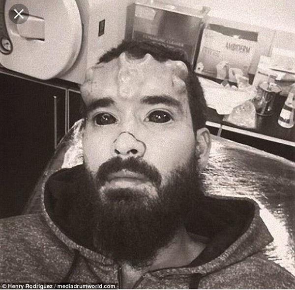 Rodriguez cấy ghép lên gương mặt và xăm mắt toàn bộ màu đen