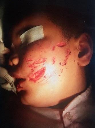 Bác sĩ đã phải khâu khoảng 200 mũi trên gương mặt cháu bé