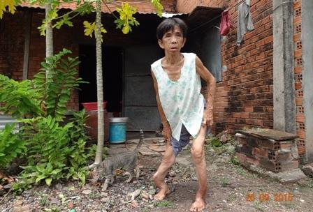 Thân hình kỳ dị và nỗi đau bệnh tật đang gặm nhấm sự sống của bà
