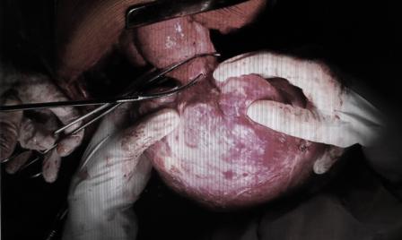 Bác sĩ đã thực hiện phẫu thuật bóc toàn bộ khối u