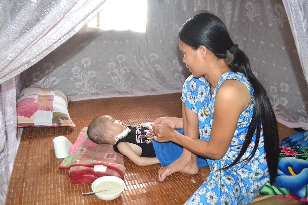 Chị Hương phải đặt ống thông mũi mới cho được con ăn.