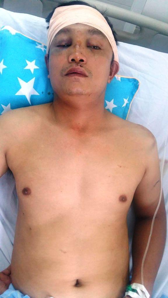 Hình ảnh anh Trần Xuân Hưng điều trị đa vết thương tại bệnh viện sau khi bị nhóm đối tượng truy sát, dí súng bắn vào đầu.