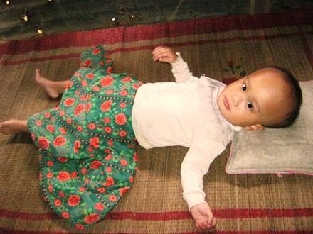 Vừa lọt lòng mẹ, bé Thiện đã mắc phải căn bệnh não úng thủy bẩm sinh