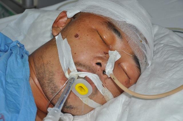 Hiện em đã được chuyển về bệnh viện đa khoa tỉnh Hải Dương nhưng vẫn trong tình trạng nguy kịch (Ảnh chụp Nhường hồi còn ở BV Việt Đức).