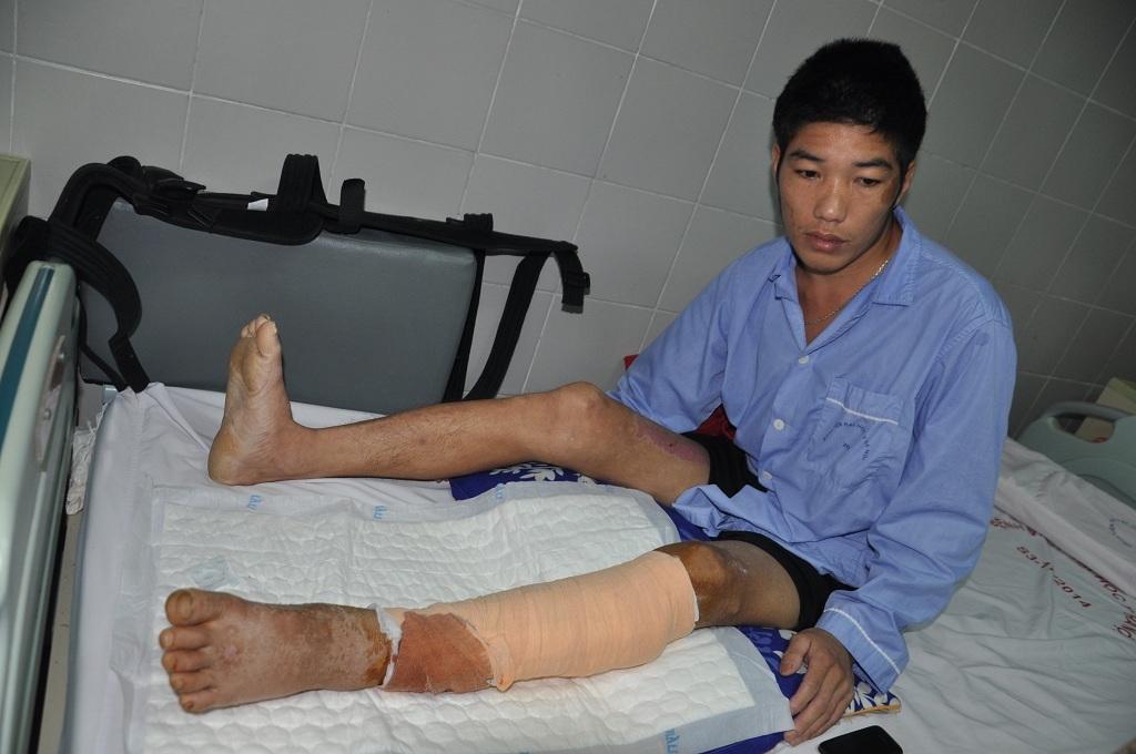 Sau ca phẫu thuật chân trái của Hừ đã được giữ lại, hiện em đang trong thời gian hồi phục và tập luyện.