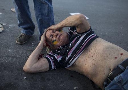 Rất nhiều người đã bị thương. Người đàn ông này đã bị vỡ đầu và máu chảy vương khắp người