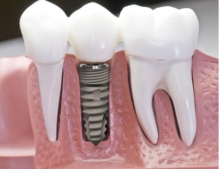 Quy Trình Cắm Ghép Implant An Toàn Tại Nha Khoa Đông Nam