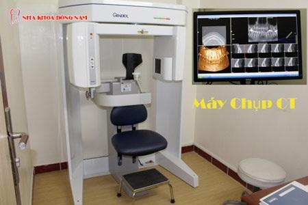 - Tại Nha Khoa Đông Nam, Bệnh nhân được chụp CT Scanner tại chỗ và hoàn toàn miễn phí.