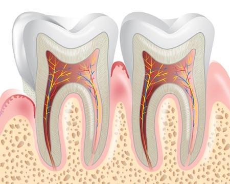 Nếu bị viêm nướu nặng, bạn có thể đối diện với nguy cơ mất răng…vĩnh viễn