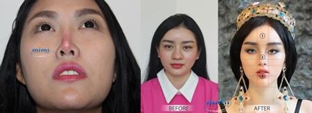 Ekip bác sĩ Hàn Quốc khẩn cấp ra phác đồ xử lý mũi hỏng cho Phi Thanh Vân