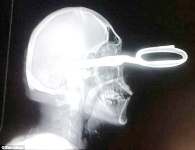 Chụp X-quang cho thấy kéo xuyên vào thuỳ đỉnh của nao