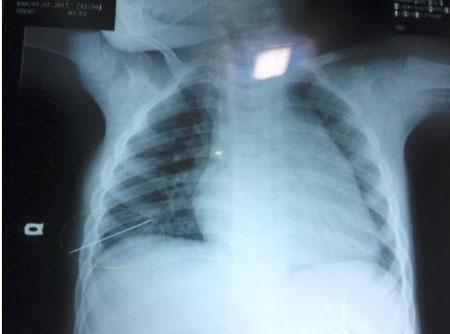 Ảnh chụp X - quang cho thấy vật nhọn đã đâm xuyên phổi em nhỏ.