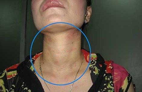 Một bệnh nhân sau khi sử dụng mỹ phẩm đã phải đến BV Da liễu vì những vết nổi mẩn trên cổ. Ảnh: BS