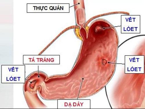 Nguyên nhân viêm loét dạ dày