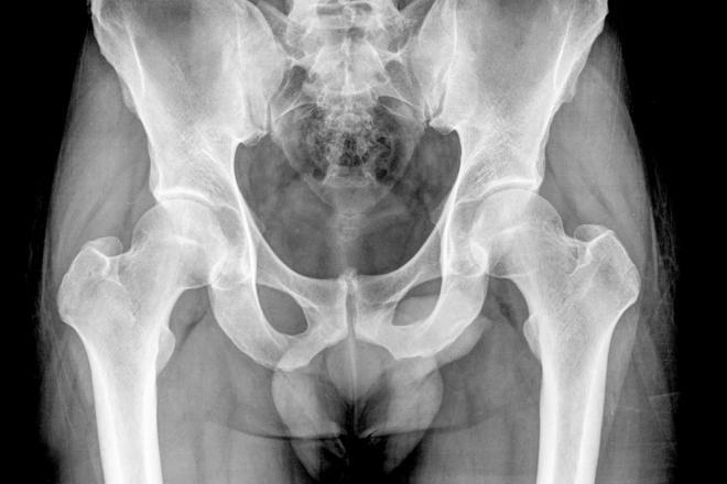 Hi hữu bào thai hóa đá 50 năm trong bụng cụ bà