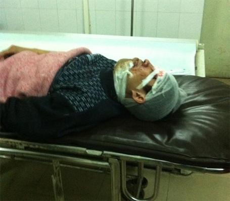 Anh V đang điều trị tại bệnh viện