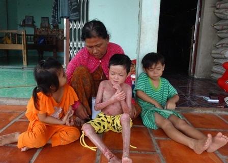 Ngoài việc chăm sóc bé Nghi, bà Năm còn phải nuôi nấng, chăm bẳm thêm 2 cháu ngoại nữa