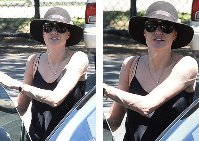 Nữ diễn viên 40 tuổi đã khỏe hơn nhiều sau ca phẫu thuật cắt bỏ buồng trứng