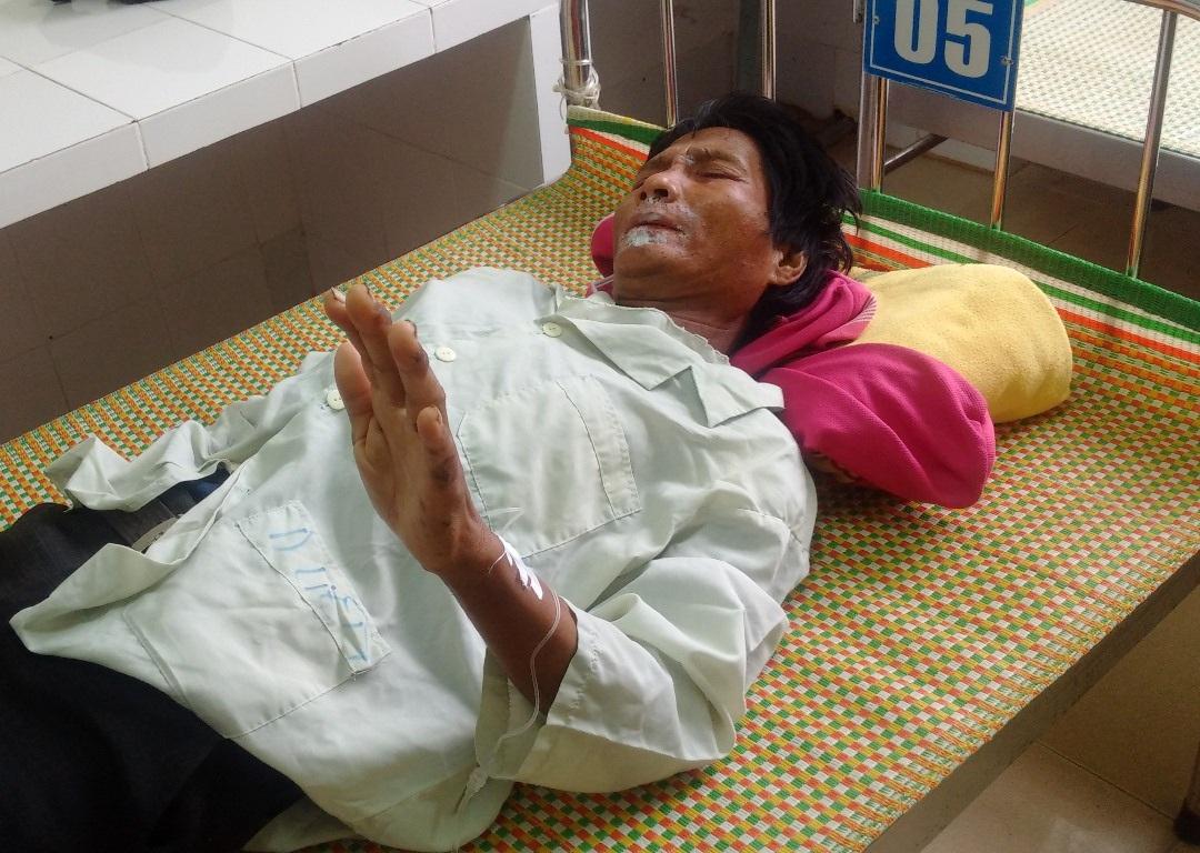 Bẹnh viêm da lạ thể hiện rõ ở phần mặt, tay của bệnh nhân.