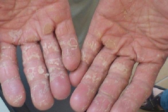 Mùa đông, người bệnh cần tránh tiếp xúc với hóa chất, xà phòng… Ảnh: P.T