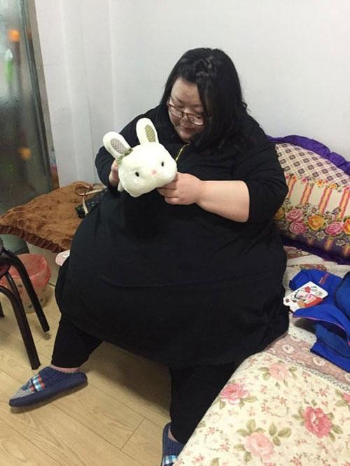 Cô gái phải cắt dạ dày để giảm cân - 2