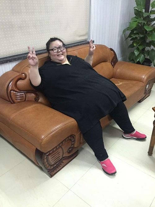 Cô gái phải cắt dạ dày để giảm cân - 8