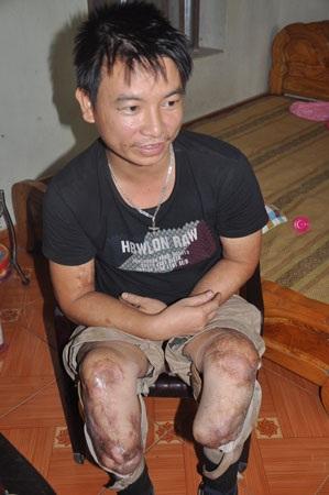 Đôi chân bị cụt vì tai nạn lao động nhưng 5 năm qua, anh Soạn là chỗ dựa cho vợ và con trong cuộc sống