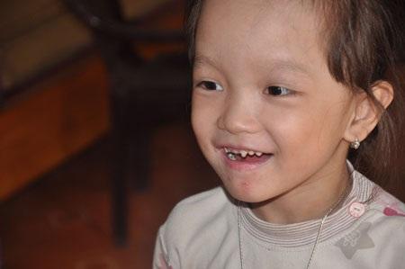 Bệnh lột da ếch khiến hàm răng của bé Uyên Nhi sún hết. Em chỉ có thể ăn cháo chứ không nhai được cơm. Trên cơ thể bé thường xuyên mọc ra các bỏng nước, chảy máu gây ngứa ngáy khó chịu