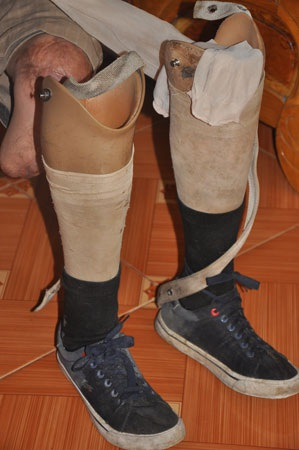 Anh Soạn có thể đi lại mưu sinh bằng đôi chân giả được các nhà hảo tâm giúp cho 5 năm về trước