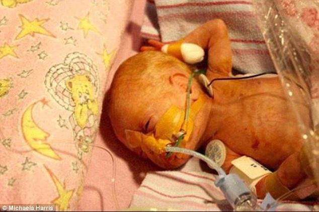 Cuối cùng Grace đã không còn phải thở oxy từ lúc 18 tháng tuổi và đã vượt qua tất cả các xét nghiệm về thính giác, mắt và các xét nghiệm khác, cô Harris chia sẻ.