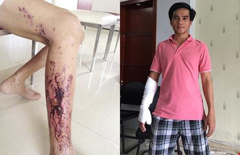 Chân của nạn nhân Đỗ Thanh Dũng (trái) và anh Lê Danh Dũng bị bỏng tay do chất tẩy rửa (phải). Ảnh: H.PHƯỢNG