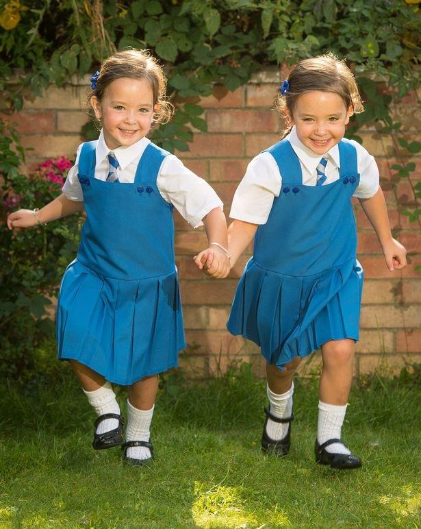 Phép màu đến với hai cô bé sinh đôi dính liền bụng - 1