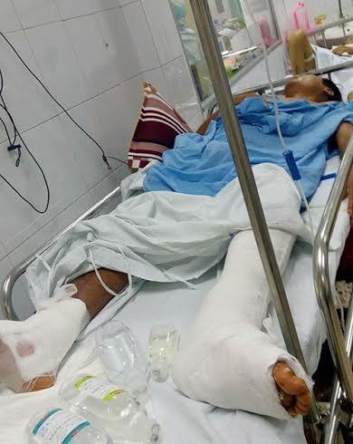 Mổ nhầm chân: Bác sĩ nhận lỗi vì không xem bệnh án - 1