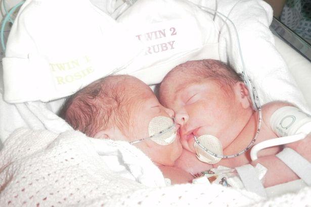Phép màu đến với hai cô bé sinh đôi dính liền bụng - 2