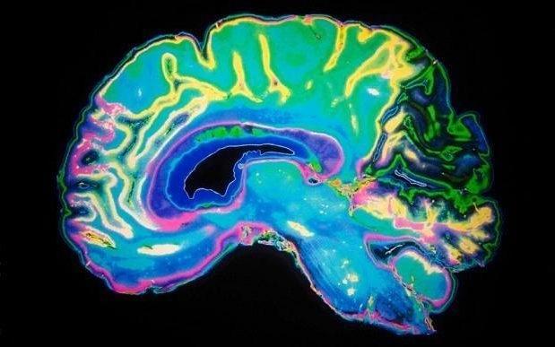 Những thay đổi có thể nhìn thấy được về thể tích của chất trắng trong não bộ