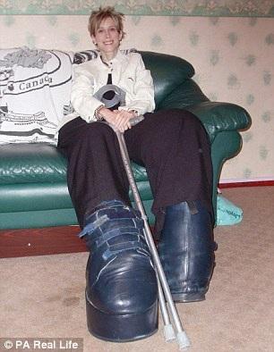 Chỉ riêng đôi chân của Mandy Sellars thôi đã nặng 108kg