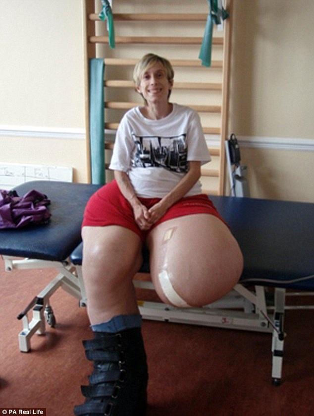 Các bác sĩ đã cắt cụt một chân đi nhưng không ngăn được sự phát triển kỳ lạ.
