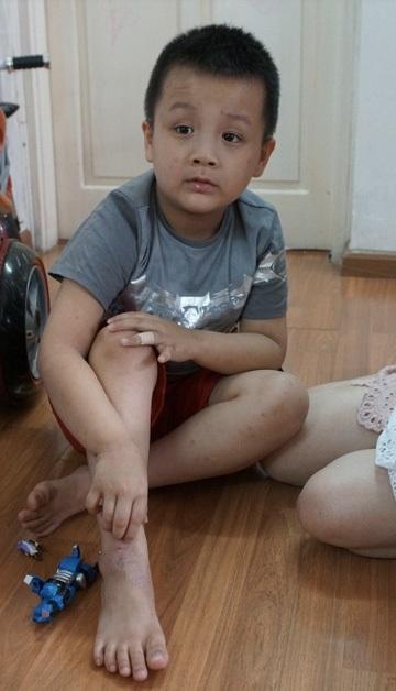 Cậu bé Việt đầu tiên chữa viêm da cơ địa bằng suối khoáng tại Pháp - 1
