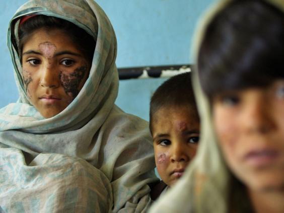 Những gương mặt trẻ biến dạng vì bệnh Leishmaniasis da
