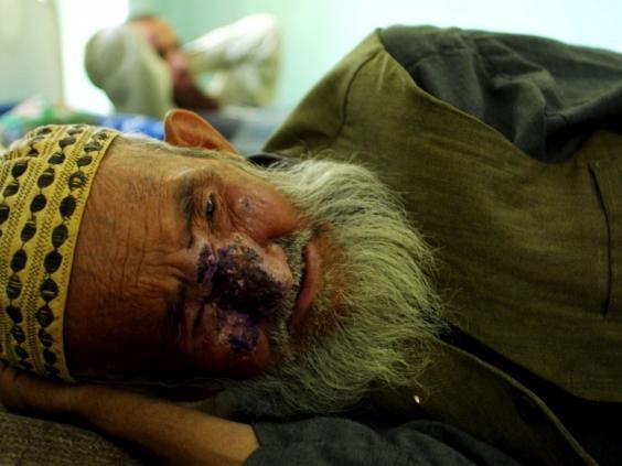 Một người đàn ông bị bệnh Leishmaniasis da