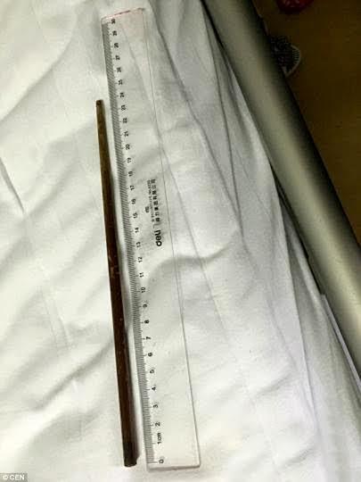 Cây đũa dài 24cm nằm trong bụng suốt 3 tháng.